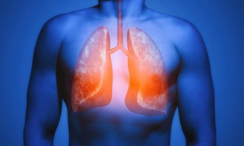 Tuberkulose (TBC): Achtung bei lang anhaltendem Husten!