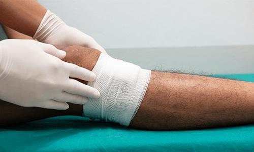 Ulcus cruris, Ulcus cruris Symptome verband unterhalb Knie