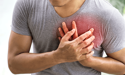KHK — Die koronare Herzkrankheit