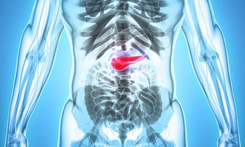Bauchspeicheldrüsenentzündung Pankreatitis