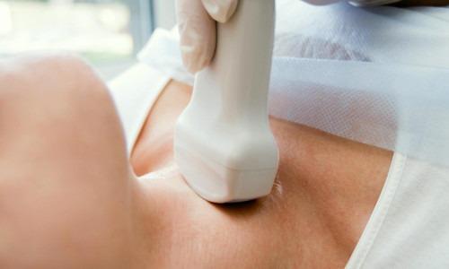Hashimoto, Frau, liegend, Kinn bis Hals, Ultraschalluntersuchung