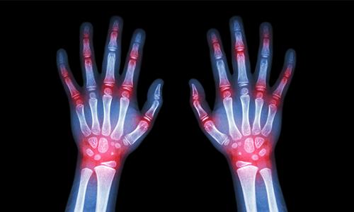 Gicht: Symptome, Ursachen und Hausmittel
