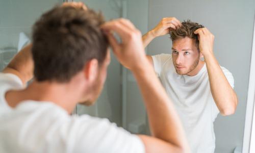 Haarausfall Alopezie